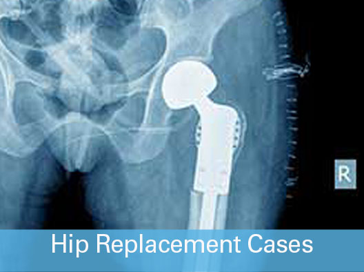Hip Replacement Cases